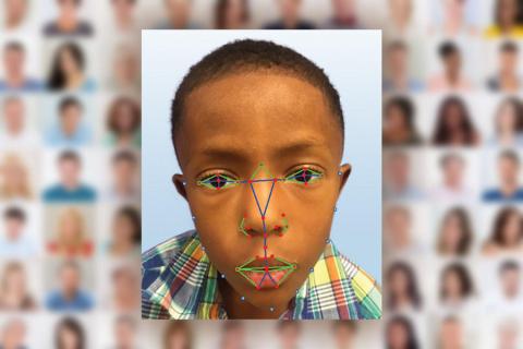 Il Riconoscimento Facciale aiuterà a rilevare una rara malattia genetica!